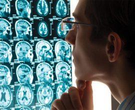 CORPO DICE BASTA! Fisiologia e neurologia dello stress e le ricadute sulla salute